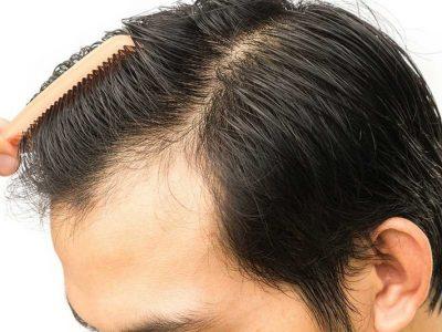 cấy tóc 2
